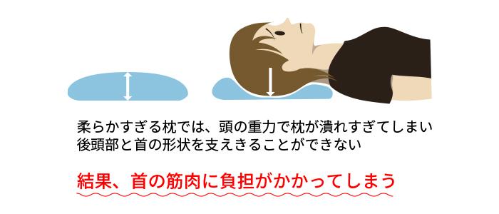 首の筋肉に負担
