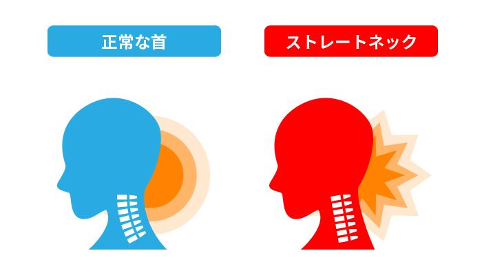 正常な首とストレートネックの比較